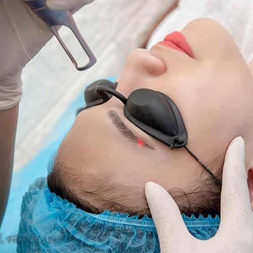 Dùng tia laser để xử lý lông mày trổ xanh, trổ đỏ