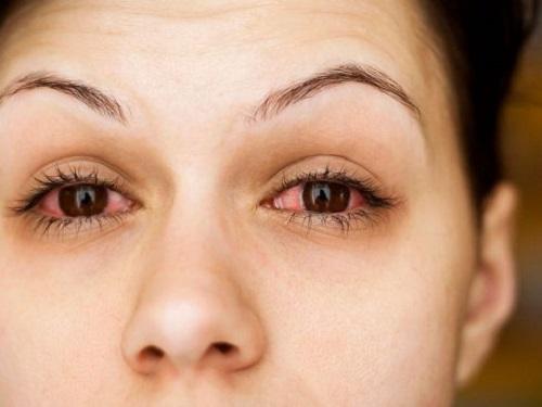 Có nhiều nguyên nhân khiến mắt bị đỏ khi nối mi
