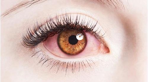 Rửa sạch mắt bằng nước muối sinh lý...để mắt bớt đỏ