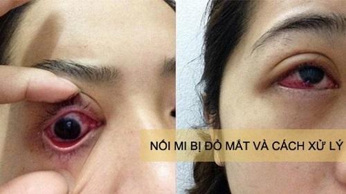 Nối mi bị đỏ mắt nguyên nhân do đâu