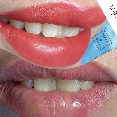 Chi phí thực hiện khử thâm môi tại mỗi cơ sở là không giống nhau.