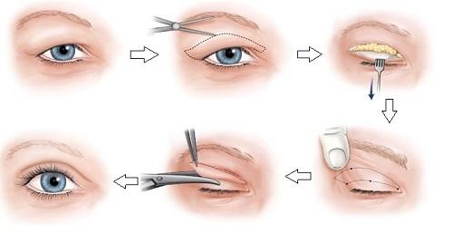 Tùy theo tình trạng mí mắt của bạn mà nên lựa chọn phương pháp làm đẹp thích hợp.