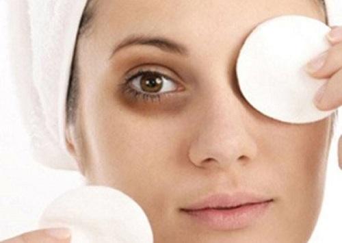 Có nhiều nguyên nhân khiến bạn bị thâm quầng mắt.