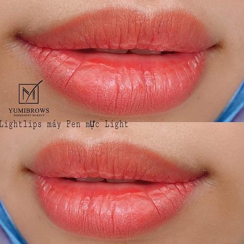 Vì thế cần kiêng cho tới khi môi lành và dần ổn định màu.