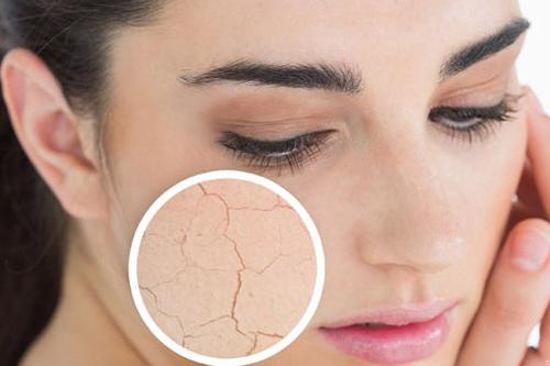 cách chăm sóc da mặt vào mùa hanh khô