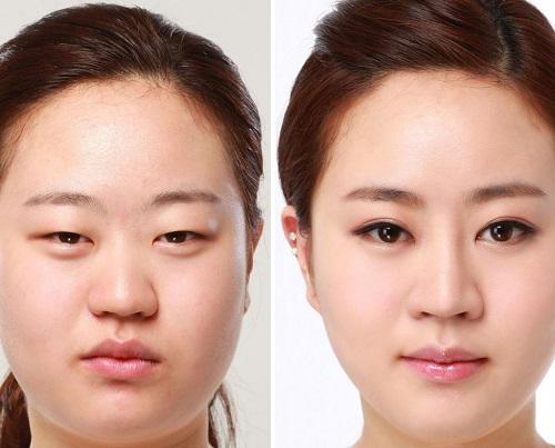 Bạn có thể tham khảo nhiều phương pháp cải thiện tình trạng sụp mí cho mắt.
