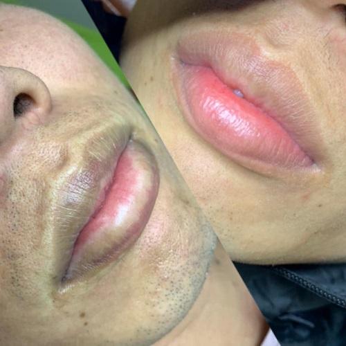 Hoặc tham khảo phương pháp khử thâm môi nam tại học viện YumiAcademy.